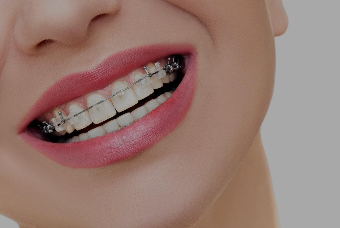 ortodoncia granollers